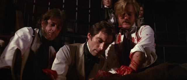 Timothy Dalton as the Scottish surgeon Thomas Rock in Freddie Francis' The Doctor and the Devils (1985)