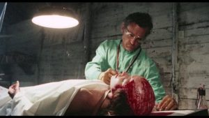 Like all good doctors, Dr. Obrero (Donald O'Brien) conducts his experiments for the good of humanity in Marino Girolami's Zombi Holocaust (1980)