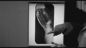 Evidence of the critter's existence shows up on an x-ray in William Castle's The Tingler (1959)