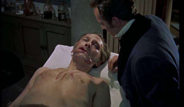 Critically injured by his victims, the Baron (Peter Cushing) is in need of urgent repair in Terence Fisher's The Revenge of Frankenstein (1958)